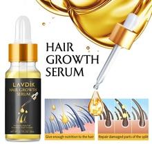 Эфирное масло для роста волос против выпадения волос уход за волосами эссенция натуральный экстракт имбирь жидкое лечение выпадения волос масло для роста волос TSLM2