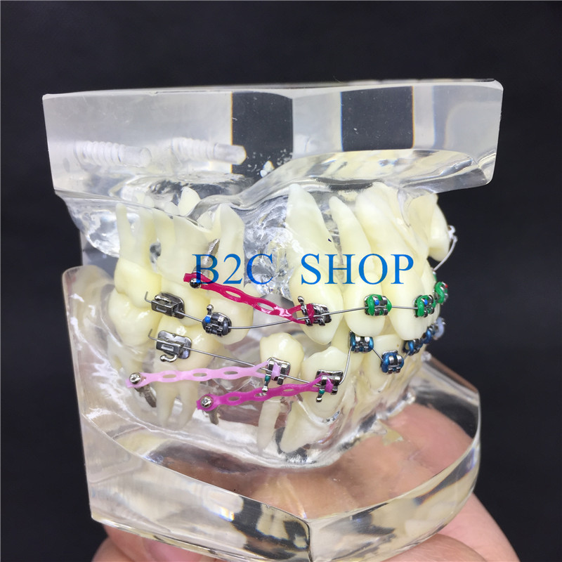 Dental Orthodontic Malocclusion Orthodontic Model With Colorful Brackets Study Model Transparent Teeth
