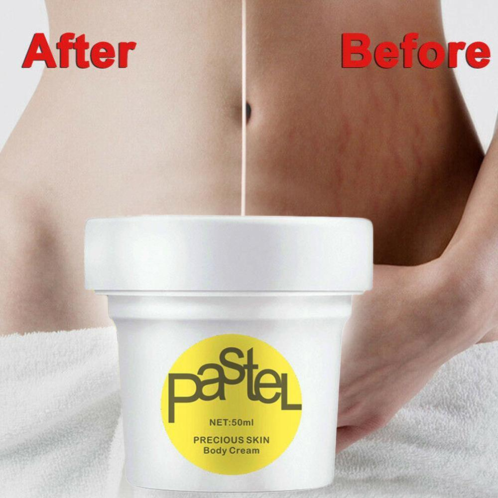 Thailand  Precious Skin Body Cream Stretch Marks Remover Scar Removal Powerful Postpartum Obesity Pregnancy Cream