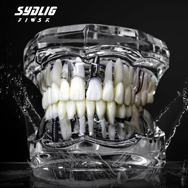 透明牙模主图2