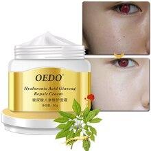Увлажняющий крем OEDO, увлажнение восстановление, анти-акне, принт, средство для снятия крема, лечение акне, уход за кожей лица