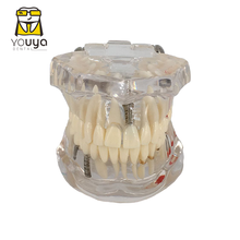 Dentes de doença transparente modelo de dentes de implante dental modelo dentista dental estudante aprendizagem, ensino, pesquisa comunicação