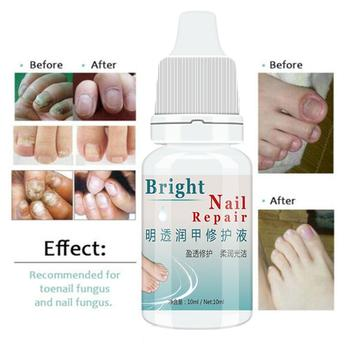 Herbs Fungal Nail Treatment Toe Nail Fungus Removal Whitening Gel Nail Dropshipping Essence Bright Anti Feet Care Foot Infe Z8E5 image