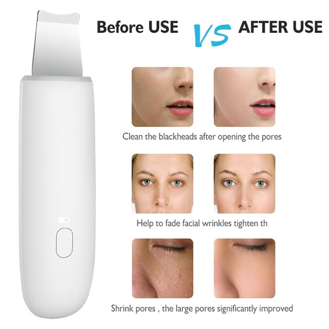 Ultrasonic Skin Scrubber Deep Cleaning Face Scrubber Vibrating Facial Cleansing Skin Spatula Peeling Beauty Instrument Device 1
