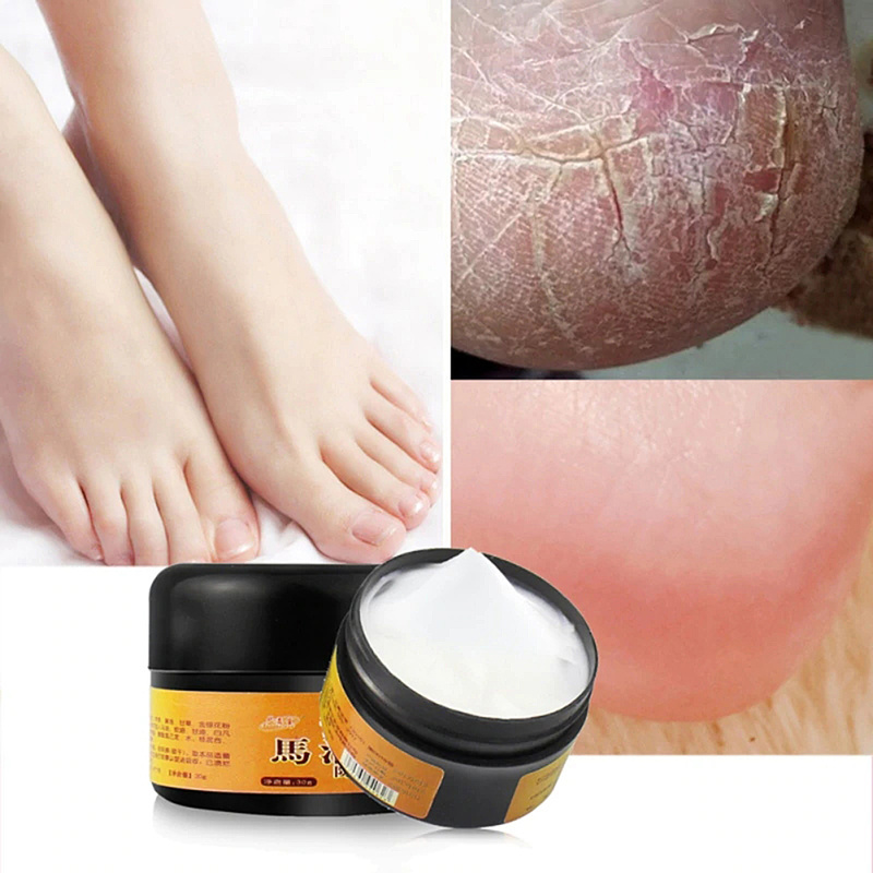 1pc Horse Oil Feet Cream Feet Cream For Athlete's Foot Feet Itching Blisters Anti-fissures Peeling For Foot Care Cream 30g TSLM1