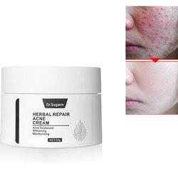 Dia Creme Para o rosto Cuidados Com A Pele Reparação de Ervas Tratamento Da Acne Clareamento Hidratante Anti Rugas Anti Envelhecimento Rosto Cuidados Com A Pele