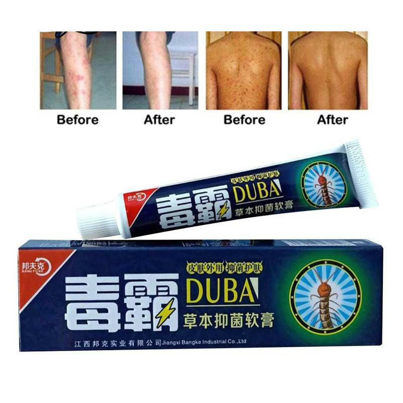 Drop Shipping Body Psoriasis Cream Perfect For Dermatitis And Eczema Pruritus Psoriasis Ointment Herbal Creams