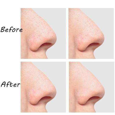 poros extrator blackspot acne remocao ferramenta