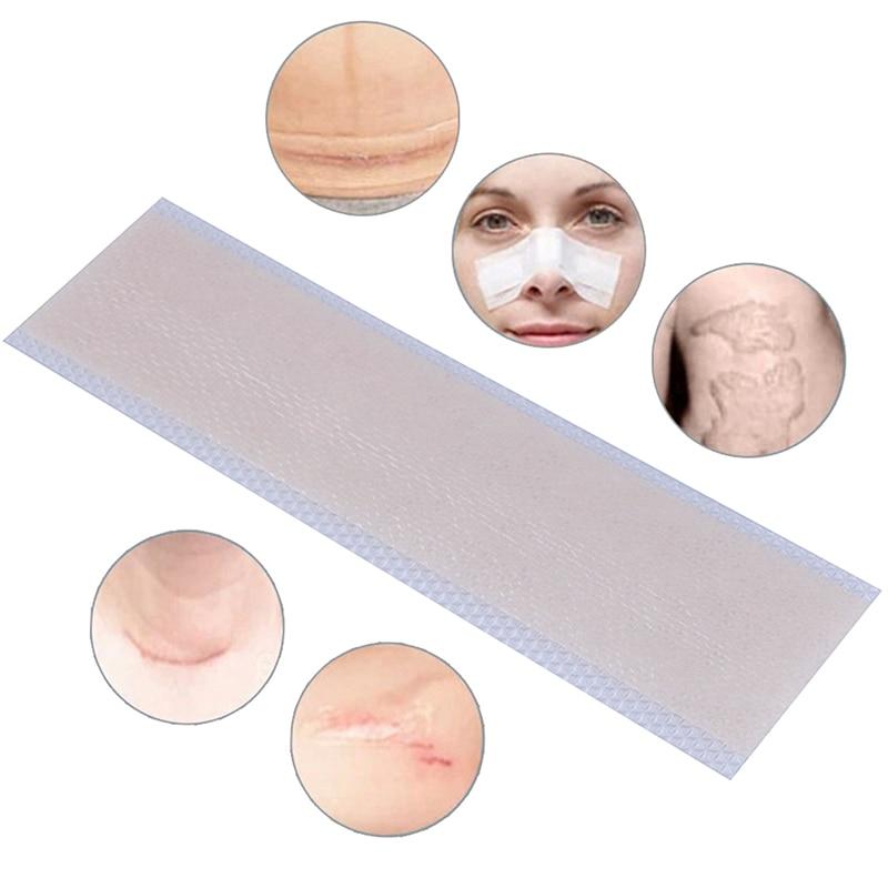 Патч для удаления силикона шрам удалить травмы ожога листа кожи ремонт шрам удаления лечение пластырь для лечения акне рубцов новая
