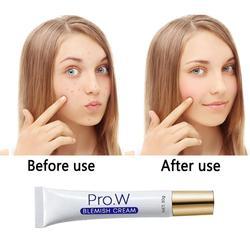 Hot sale Blemish Cream Acne Treatment Blackhead Remove Anti Acne Cream Face Care Anti Acne Removal Gel Whitening Cream 30g TSLM1