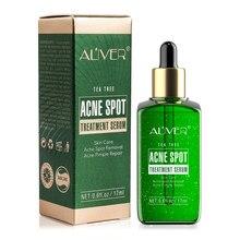 Aliver Acne Behandeling Serum Facial Serum Anti Acne Litteken Verwijdering Crème Whitening Reparatie Puistje Remover Huidverzorging Cosmetische TSLM1