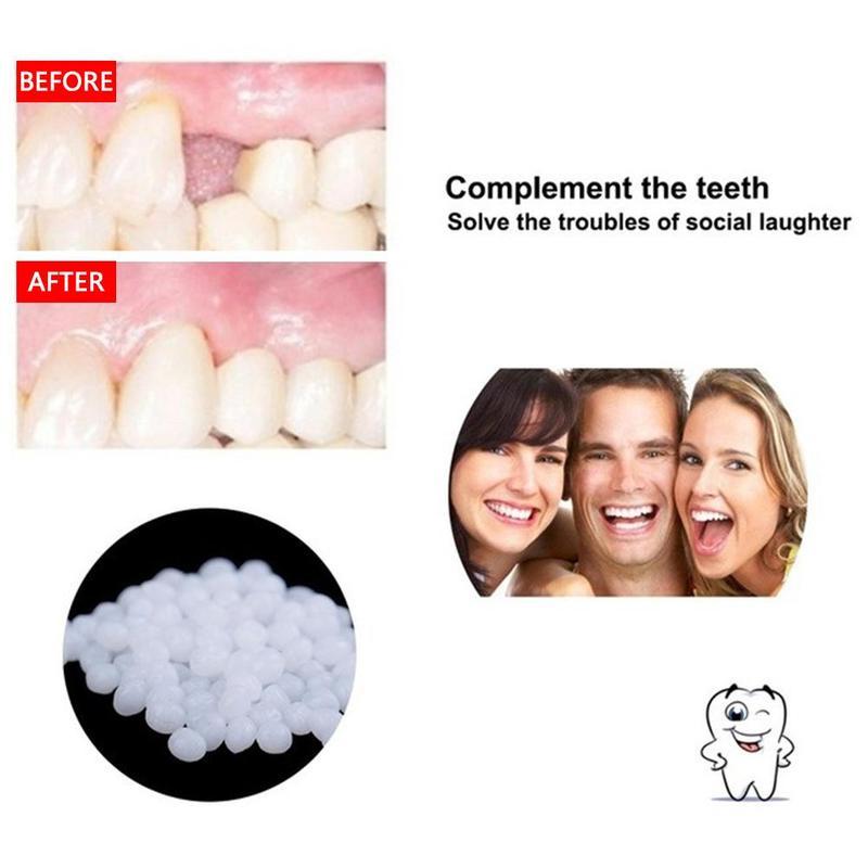 Поддельные зубы твердый клей протез Твердые виниры клей зубы стоматологический Ремонт восстановление и зазоры временный зуб A2Q2