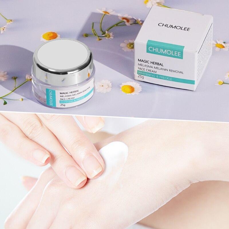 CHUMOLEE Strong Whitening Facial Cream Remove Freckle Melasma Acne Dark Pigment Spots Melanin Pimple Cream Brighten Face Cream-4