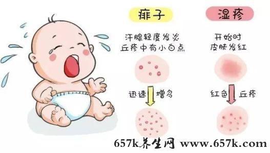 痱子和湿疹的区别 长痱子家长可以这样做