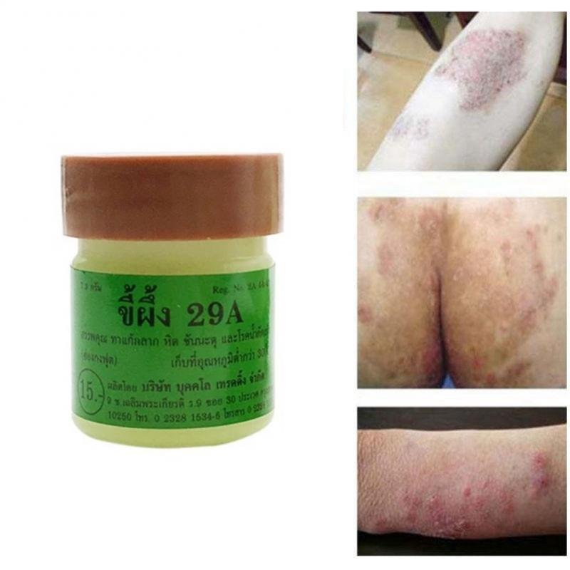 1PCS Natural Cream Works Really Well For Psoriasi Eczma 29A Original Psoriasis Dermatitis Eczema Pruritus Skin Problems Cream