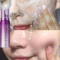 80ml Face Cleanser Removing Dead Skin Pore Tight Peeling Mousse Exfoliating Moisturizer Cleanser Oil Control Face Care 4