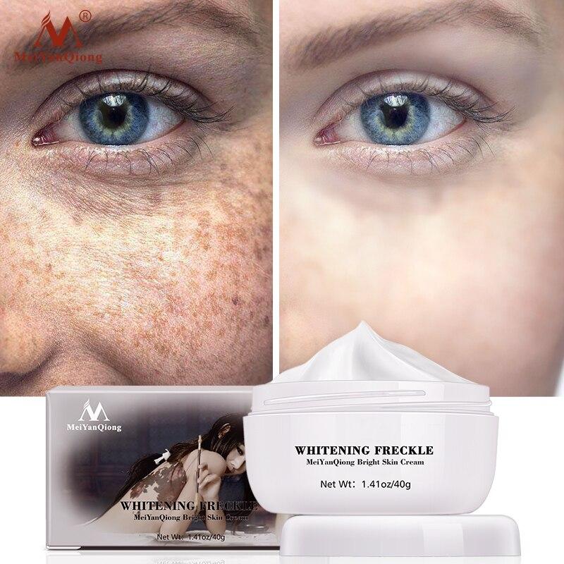 Meiyanqiong anti envelhecimento caracol rosto creme removedor de manchas escuras clareamento da pele creme cuidados com a pele escura anti sarda clareamento creme