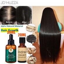 Serum Ginger Hair-Growth-Essence Hair-Repair Scalp-Treatment Prevent-Hair-Loss Damaged