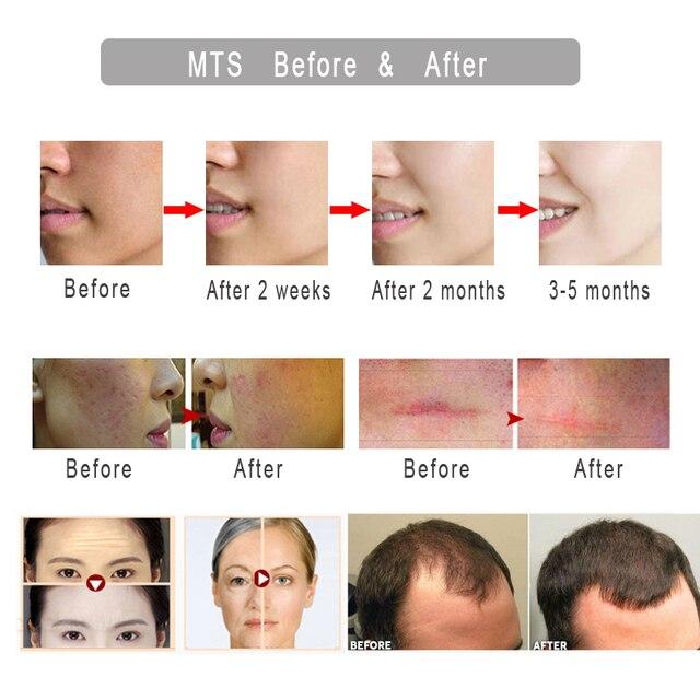 Derma roller MNS 192 Titanium Needle Mezoroller agulhamento Micro Needle Hair Regrowth Beard Growth Facial Skin Care Dermaroller 2