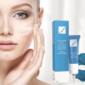 15g Scar Removal Cream Face Cream For Face Acne Scar Stretch Marks Remover Cream Skin Repair Face Cream Acne Spots d ran wonder cream face
