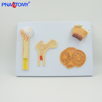 Enlarged skeleton bone model periosteum, blood vessels, spongy bone, compact bone and haversian system femur model medical teach enlarged skin model