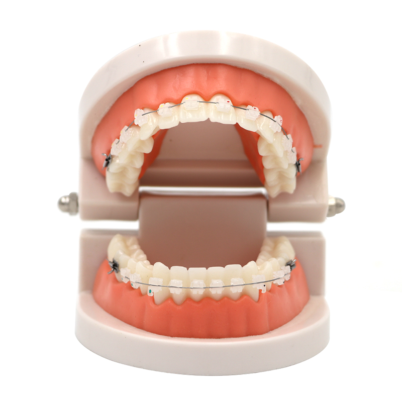 1pc Dental Teaching Teeth Model With Ceramic Brackets Study Tooth Model Dentist Patient Communication Adult Teeth Model