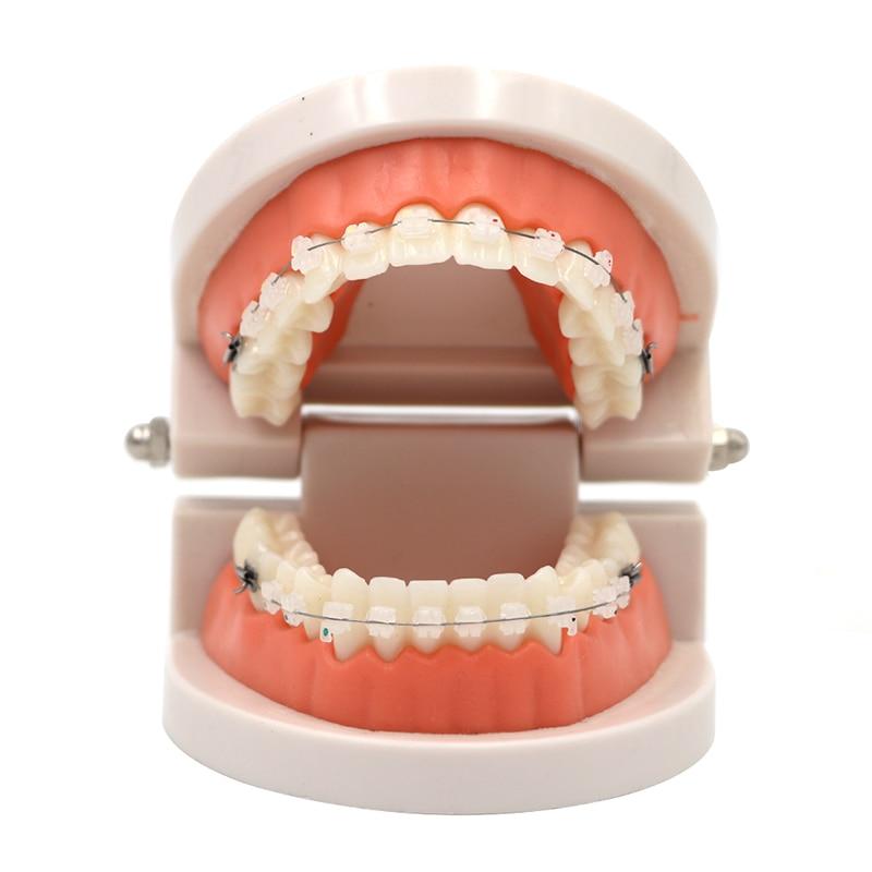 1pc Dental Teaching Teeth Model With Ceramic Brackets Study Tooth Model Dentist Patient Communication Adult Teeth Model