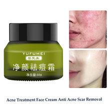 Leczenie trądziku krem do twarzy usuwanie blizny potrądzikowe pryszcz zaskórnika nawilżający wybielanie kontrola oleju zmniejszanie porów pielęgnacja skóry