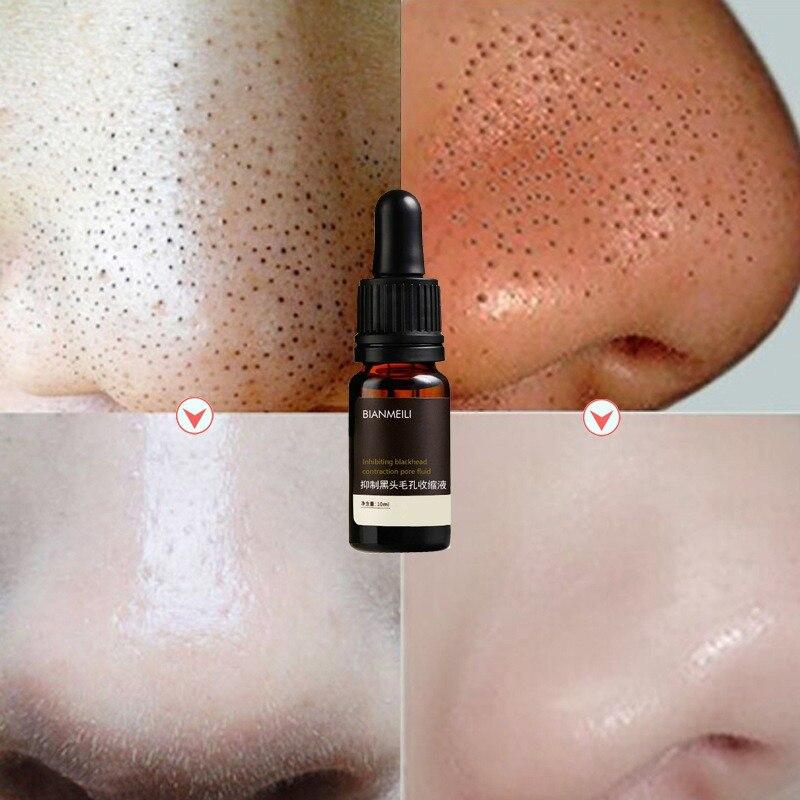 Feuchtigkeitsspendende Straffende Haut Poren Schrumpfen Öl-Control Poren Schrumpfen Flüssigkeit Entfernen Mitesser Poren Kontraktion Gesicht Essenz