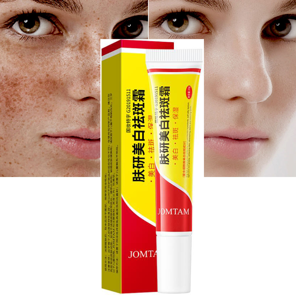 Effective Whitening Freckle Cream Remove Melasma Acne Spot Pigment Melanin Dark Spots Pigmentation Moisturizing Gel Skin Care