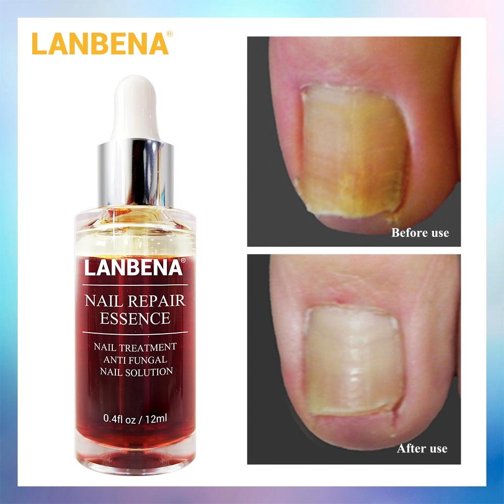 Lanbena Repair Essence Serum Fungal Nail Treatment Remove Onychomycosis Toe Nourishing Brighten Hand Foot Skin Care 12ml