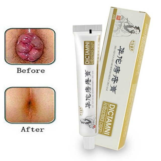 Hemorrhoids Ointment Chinese Cream Powerful Hemorrhoids Cream Internal Hemorrhoids Piles External Anal Fissure medical plaster
