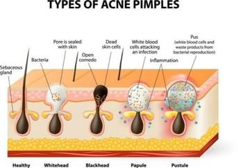 10-100pcs Nose Blackhead Remover Mask Deep Cleansing Skin Care Shrink Pore Acne Treatment Mask Nose Black dots Pore Clean Strips 2