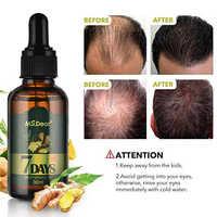 Aceite Esencial de jengibre para el crecimiento del cabello, esencia líquida para la pérdida de cabello, esencia para el crecimiento del cabello denso, rápida explosión solar, 7 días