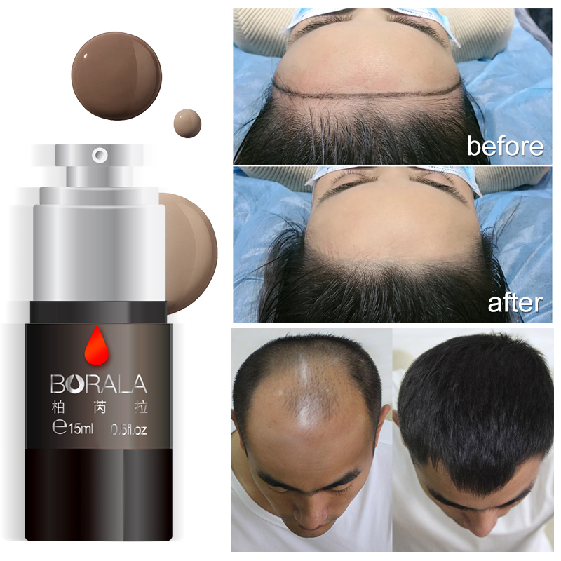 Borala Tattoo hairline Pigment for Hair Scalp pigmentation Tattoo Microblading&Machine Operation Super cost-effective