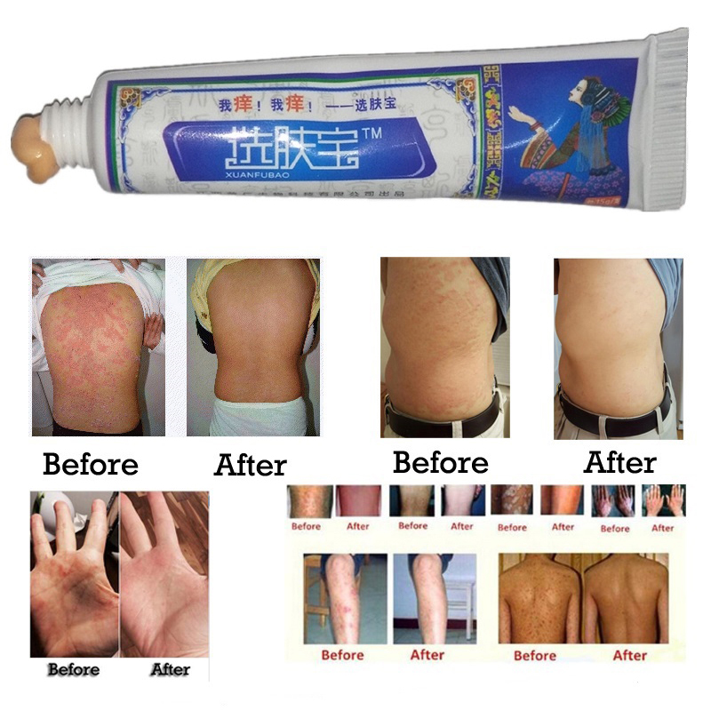 Treatment Psoriasis Eczema Itching Skin Care Herbal Body Cream Psoriasis Cream Dermatitis Itching Repair Eczematoid Ointment