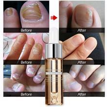 Serum Nail-Treatment Removal-Gel Paronychia Feet-Care Fungus Anti-Infection 15ml