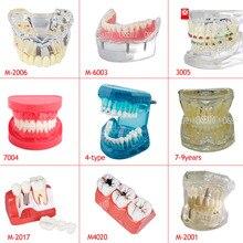 Стоматологическая демонстрационная стандартная типодонт модель зубов Стоматологическое исследование обучающая модель демонстрационная четкая модель с обучением и наукой