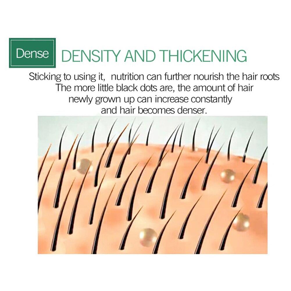 Hair Care Hair GrowthSpray Natural Hair Treatment  Loss Products Conditioner Essential Oil Liquid Health Care Beauty Dense Hair 5