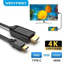 Vention USB C to HDMI 케이블 4K Type c HDMI Thunderbolt 3 어댑터 (MacBook 용) Samsung Galaxy S10/S9 Huawei Xiaomi Type c to HDMI