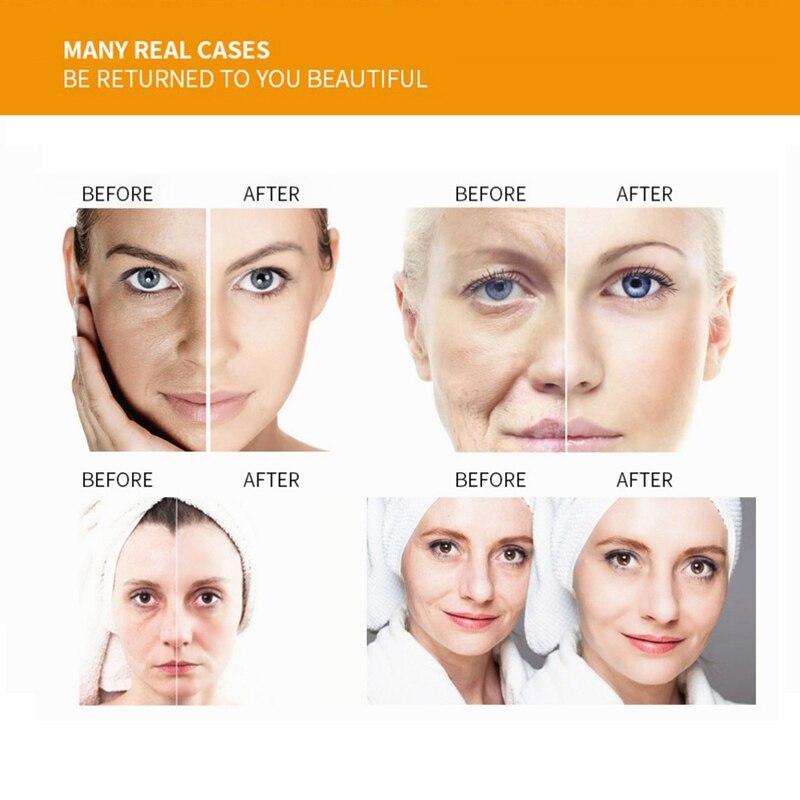 Natural Vitamin C VC Serum Brightening Moisturizing Anti-Aging Anti-wrinkle Skin Care Essential Oils Face Care Serum Beauty