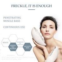 Aichun Whitening Freckle Cream Remove Melasma Acne Spot Lighten Dark Spots Pigment Melanin Hydration Moisturizing Face Care 30ml 6