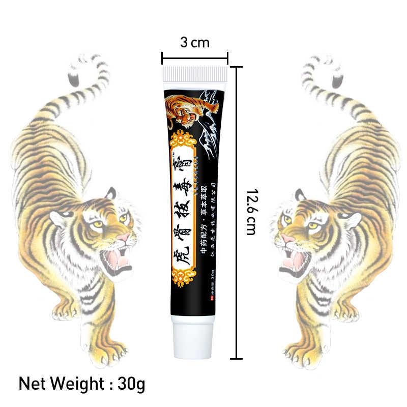 3 pièces baume de tigre noir crème analgésique polyarthrite rhumatoïde articulaire soulagement des douleurs dorsales onguent chinois à base de plantes plâtre médical D2930