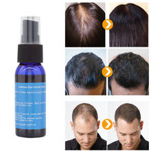 Get more info on the Lanthome Hair Growth Oil Products Hair Loss Treatment Regrowth Essence Men and Women Hair Care Growth Serum Beauty Essence