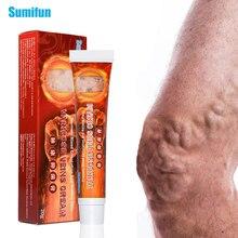 Sumifun 1Pcs Krampfadern Creme Heilung Varicosity Angiitis Heilmittel Schmerzen Erleichterung Salbe Pflanzliche Medizinische Gips Hautpflege K10004