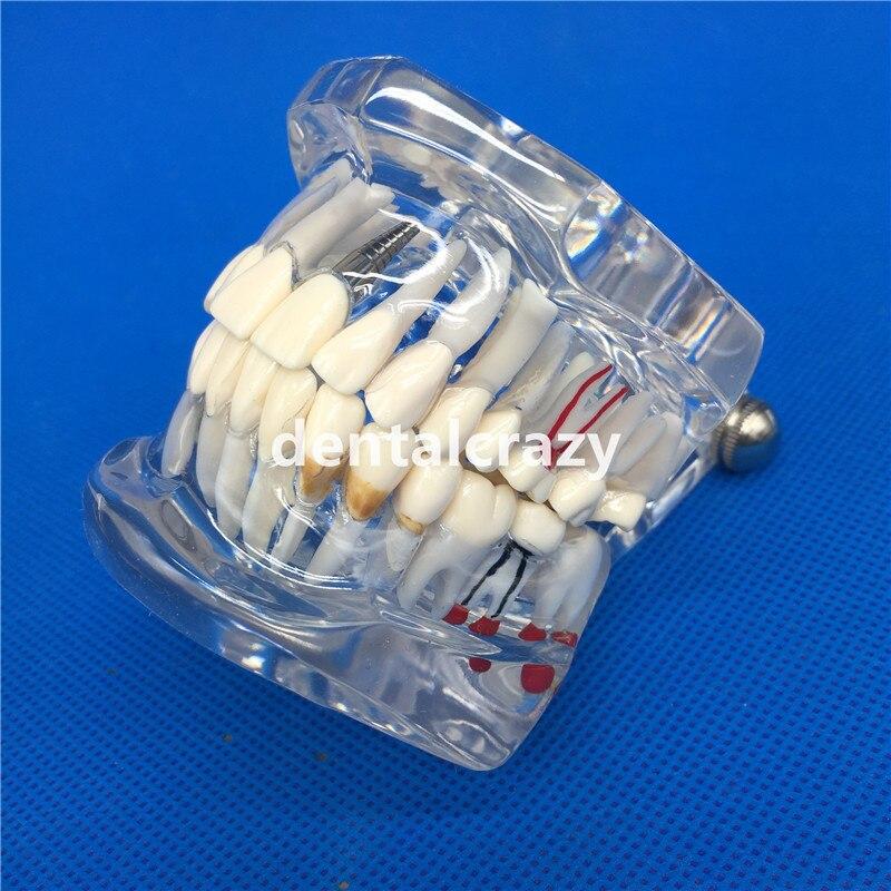 modelo dental dos dentes da doenca do implante com ponte da restauracao dentista do dente para