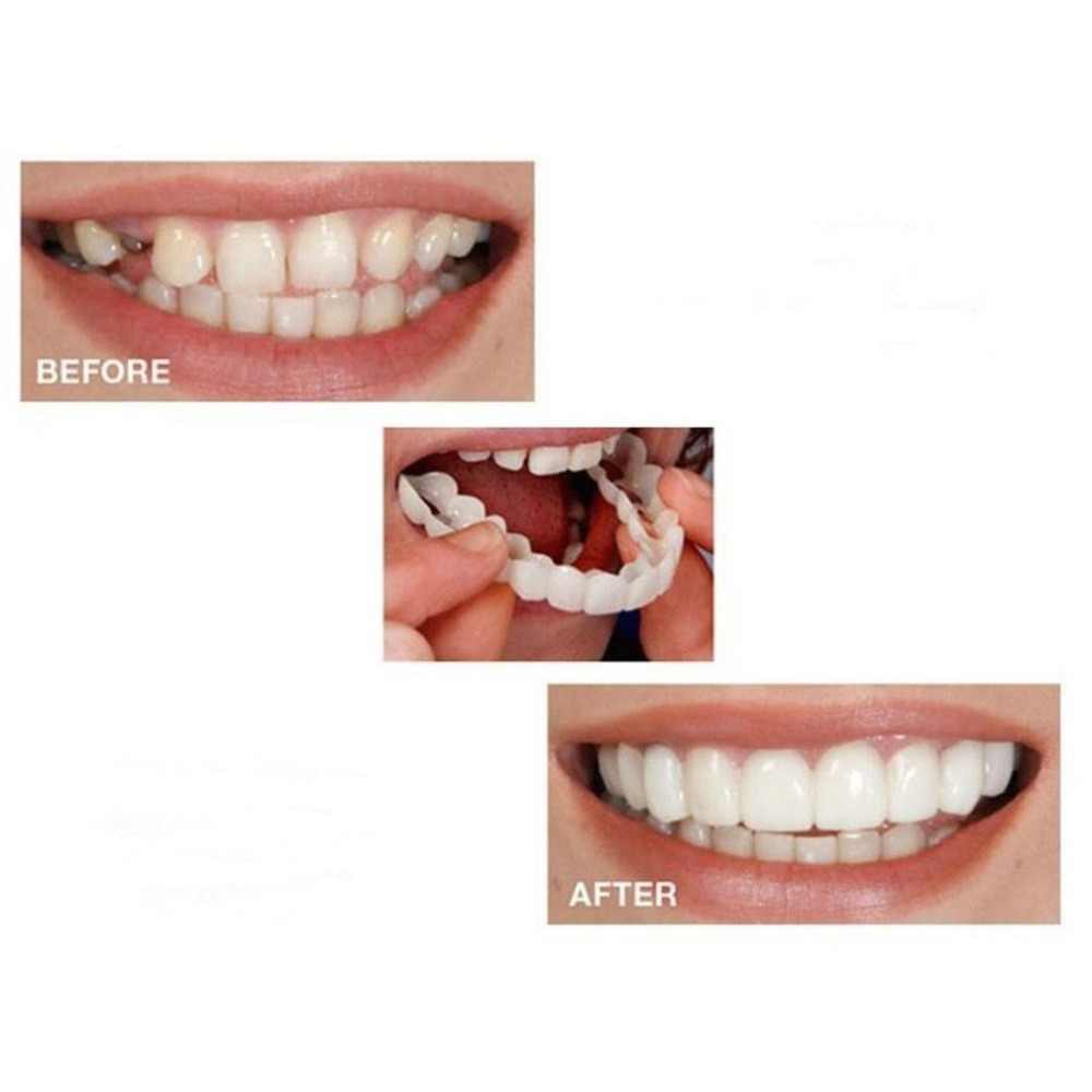 Tand Instant Perfect Smile Flex Tanden Whitening Glimlach Valse Tanden Cover