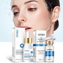 Crème blanchissante de Peptides de collagène à lacide hyaluronique, hydratant Anti âge, Essence cicatrice, élimine sérum, soins pour le visage