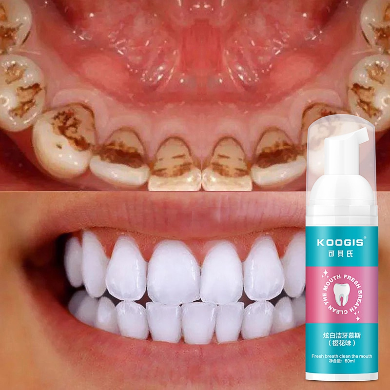 To Tooth Stains Toothpaste Whitening Foam Liquid Teeth Whitening Toothpaste Oral Mouth Wash Water Toothpaste Teeth Care 60ML