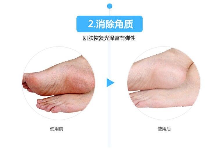 1 пара носки с гелевой подошвой, силиконовый инструмент для ухода за ногами, защита для ног, защита от боли, защита от трещин, увлажнение, удаление ороговевшей кожи, носок с отверстием